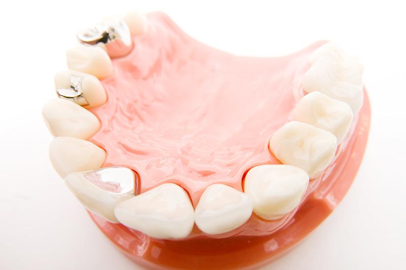 あなたの銀歯、アマルガムじゃないですか?